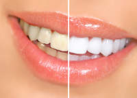 Teeth Whitening - Dentist Budd Lake NJ